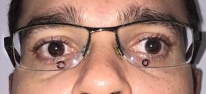 oculos ruim