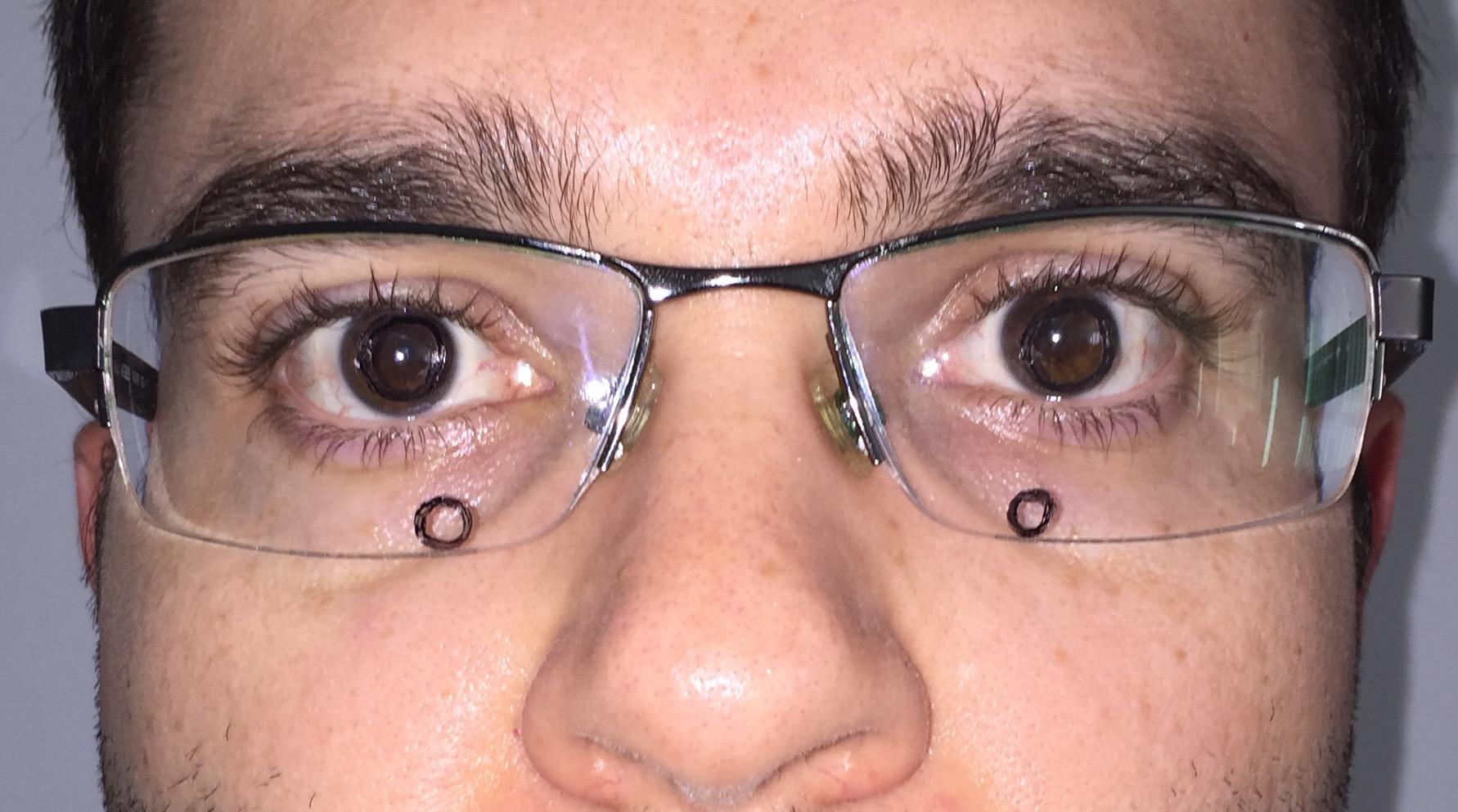 ... óculos bom Ao olhar para frente, com a cabeça reta, a marcação superior  coincide com a pupila. É dessa forma que deve estar o seu multifocal! bf64604bf9